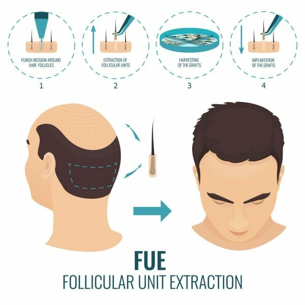 FUE Follicular Unit Extraction