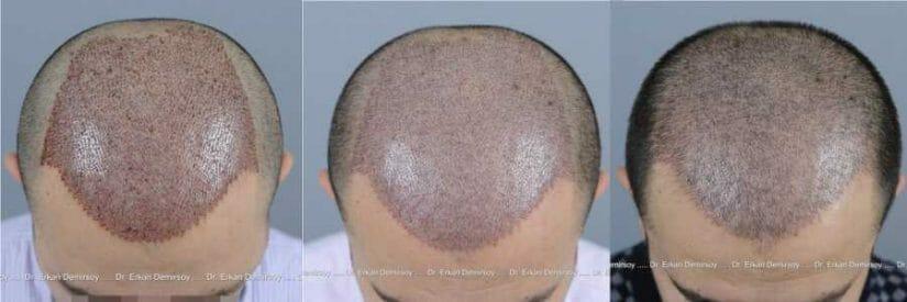 Für wen kommt die Haartransplantation in Frage?