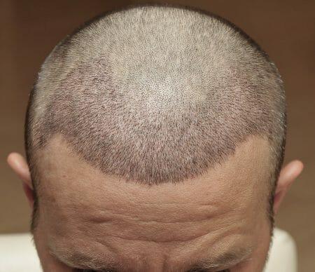 Verlauf nach der Haartransplantation