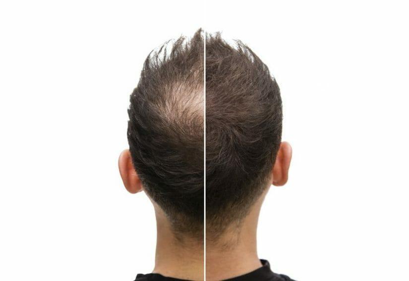 Verhalten nach der Haartransplantation