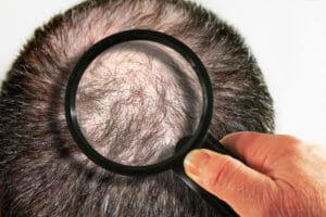 Plötzlicher und kreisrunder Haarausfall