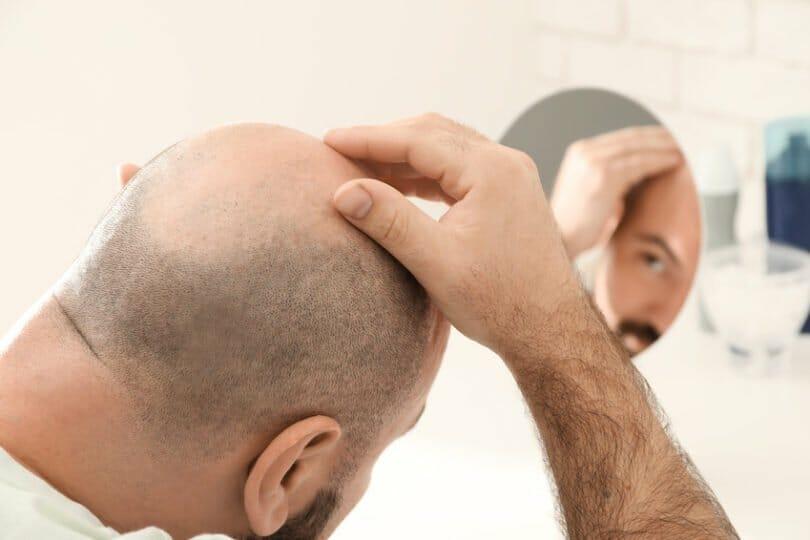 Juckende Kopfhaut kann im Zusammenhang mit Haarausfall stehen.