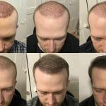 Wachstum nach einer Haartransplantation