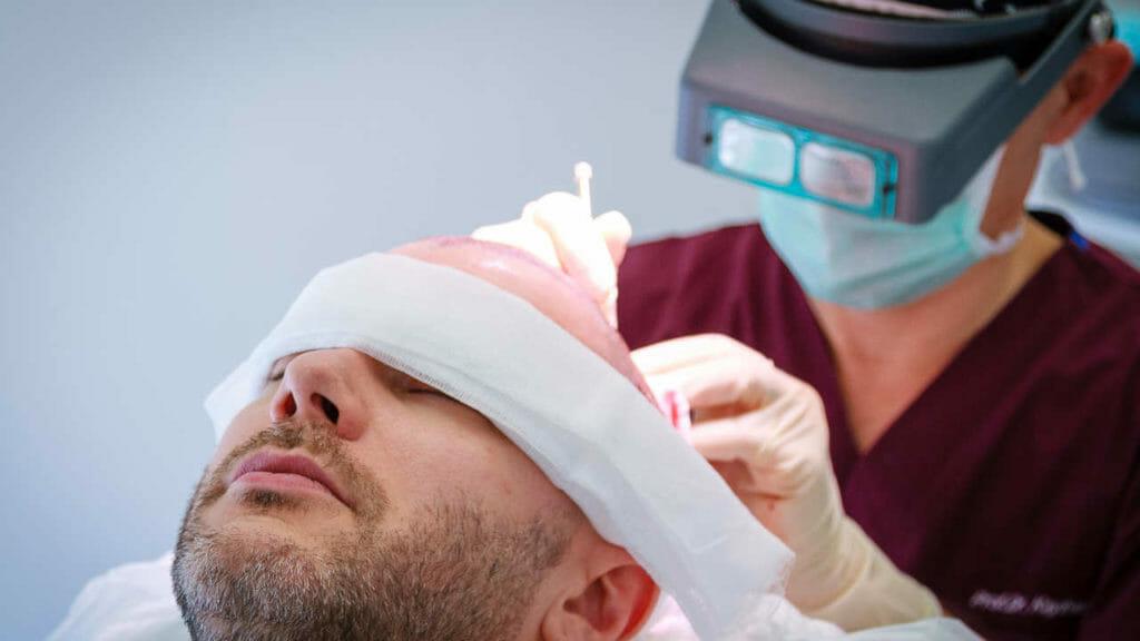 Haartransplantation Kosten Türkei