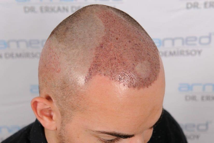 Haartransplantation Post-OP Verlauf